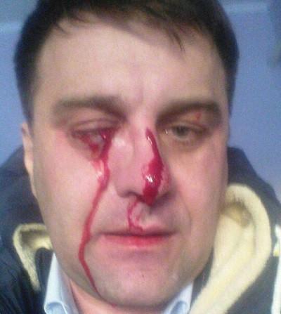 Виктор Агафонов сам обнародовал фотографии,  на которых виден ущерб, причиненный его здоровью в результате нападения депутата